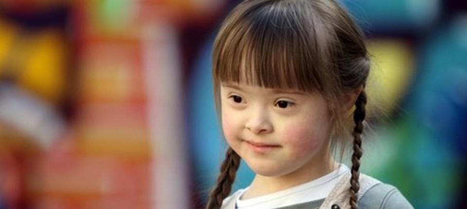 Copii cu sindromul Down